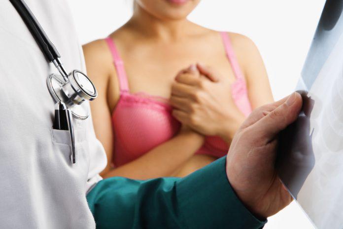 A mammográfia kétségtelenül életeket ment