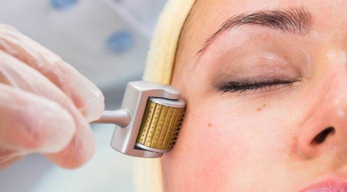 A dermaroller kezelés segít a fiatalosabb bőr elérésében