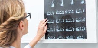 A csontritkulás megelőzhető