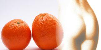 A narancsbőr sok nő életét keseríti meg