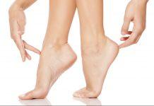 Az ápolt láb elsősorban egészséges