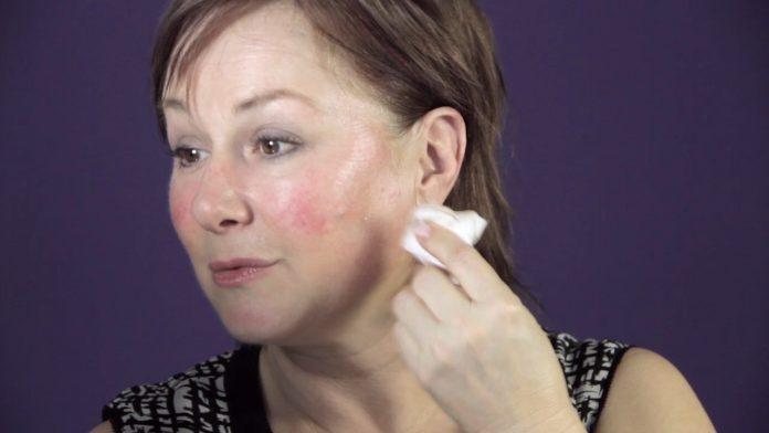 A rosaceás bőr kezelése